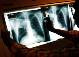 A case of Tuberculosis has been confirmed at a Scarborough school. (Getty)