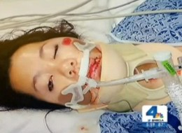 A photo of Kim Nguyen's injuries via NBC LA.