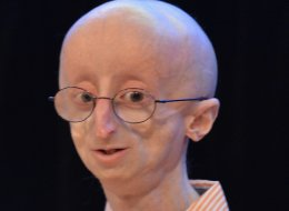 Sam Berns murió el pasado viernes 10 de enero a los 17 años.