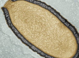 Transmission electron microscopy color image of a Pithovirus sibericum cross-section. This virion,  dating back more than 30,000 years, is 1.5 µm long and 0.5 µm wide, which makes it the largest  virus ever discovered.