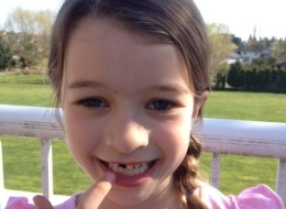 Avery Patchett lost her tooth after falling at recess.