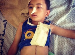Five-year-old Nour rests in a hospital bed in Gaza's al-Shifa Hospital. Both of his parents were killed in an Israeli airstrike on Tuesday, according to his grandmother.