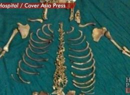 Holy crap! Doctors remove baby skeleton left in mother for 36 years