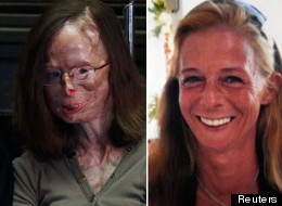 Patricia Lefranc is still in constant agony after the acid attack in 2009