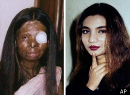 Fakhra younas was asleep when acid was thrown on her face and body
