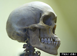 Skull sizes among white Americans are swelling, researchers say.
