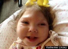 Without Medicaid, Anabelle Linzey, 2, wouldn't be able to live at home with her parents and sister, said her mother Katherine: