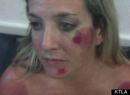 A photo of the injuries Michelle Jordan claims to have suffered at the hands of LAPD officers.