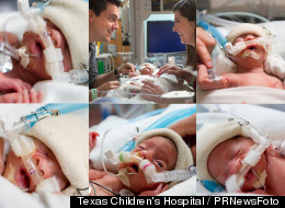 Leah Perkins, the last sextuplet to leave after her four-and-a-half month stay in the NICU at Texas Children's Hospital, is reunited with her siblings who are posing for their first ever picture since before their birth. (PRNewsFoto/Texas Children's Hospital)