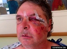 Tom Campen alleges he was beaten by two RCMP officers in Creston B.C. (cownow.ca)