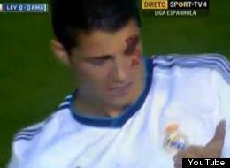 Cristiano Ronaldo sufrió un duro golpe ante Levante