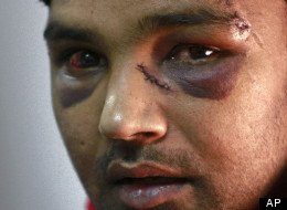 Pakistani bakery worker Ali Kaser, 25, claiming he was attacked by members of the extreme-right Golden Dawn party a day before the elections, is seen at United Against Racism and Fascist Violence Movement office during a press conference in Athens, Thursday, June 21, 2012. (AP Photo/Petros Karadjias)